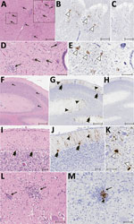 Thumbnail of Results of histopathologic testing of central nervous system tissues from 2 symptomatic newly weaned pigs from a farm in Hungary. Sections of the cervical spinal cord (A–E), cerebellum (F–J), and cortex (L, M) from the index animal (GD-1) and the brainstem (K) from an additional affected stage 1 animal (GD-11). A, D, F, I, L) Hematoxylin and eosin stain. Gliosis (black arrows) is multifocal within the gray matter (panels A, D) and in the molecular layers (panels F, I, L and M). Neur