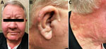 Thumbnail of Signs of Mycobacterium lepromatosis infection in 59-year-old white male US citizen, 2017. A) Leonine facies with partial loss of eyebrows and nodular lesion of chin. B) Right ear nodularity with focal crusted ulceration. C) Confluent erythema from face to neck.