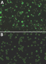 Thumbnail of Immunofluorescence assay results of infected monkey serum A) characterized by granular staining pattern of HeLa cells and B) noninfected monkey serum. Original magnification ×400.