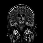 Thumbnail of Magnetic resonance imaging of brain of index patient 66 days after double lung transplantation, Hong Kong, China. Coronal FLAIR (FLuid Attenuation Inversion Recovery sequence) image of the head at the level of the lateral ventricles, thalamus, and midbrain shows high signal at bilateral thalamus, midbrain, and medial temporal lobes.
