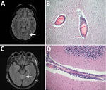 Thumbnail of Pathologic and virologic findings for 2 patients with tick-borne encephalitis, Finland, 2015. A) Magnetic resonance images of 36-year-old woman (patient 1) with pathologically increased signal in cortical sulcus regions indicative of viral meningeal process (arrow). B) Hematoxylin and eosin staining of the frontal cortex of patient 1 showed inflammation throughout the central nervous system from the spinal cord to the cortex and cerebellum; original magnification ×100. C) Magnetic r