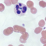 Thumbnail of Anaplasma phagocytophilum morulae observed on peripheral blood smear from patient in whom anaplasmosis infection developed after a blood transfusion, New York, New York, USA. Intracytoplasmic inclusions (morulae) were first seen 15 days after the patient was transfused with an infected erythrocyte unit, leading to a diagnosis of human granulocytic anaplasmosis later confirmed by PCR (original magnification ×1,000 [oil immersion]).