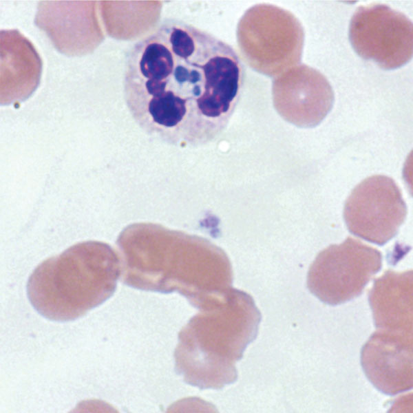 Anaplasma phagocytophilum morulae observed on peripheral blood smear from patient in whom anaplasmosis infection developed after a blood transfusion, New York, New York, USA. Intracytoplasmic inclusions (morulae) were first seen 15 days after the patient was transfused with an infected erythrocyte unit, leading to a diagnosis of human granulocytic anaplasmosis later confirmed by PCR (original magnification ×1,000 [oil immersion]).