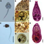 Thumbnail of Species of heterophyids transmitted by Melanoides tuberculata snails in Peru. A–D) Centrocestus formosanus: cercaria (pleurolophocercous type) (A), encysted metacercariae in gills of Poecilia reticulata (B, C), and adult parasite obtained in experimentally infected mouse (D). E–H) Haplorchis pumilio: cercaria (parapleurolophocercous type) (E), metacercariae found at the base of the caudal fin of P. reticulata (F–G), and adult recovered in experimentally infected mouse (H). Scale bar