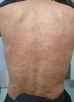 Thumbnail of Rash on the back of a patient (patient 10 in Table 1) with confirmed Trichinella T9 infection associated with consumption of bear meat, Japan, December 2016. Patient had onset of macular and popular, confluent, and pruritic rash with diffuse blanching on the scalp, face, chest, abdomen, back, and upper and lower extremities. Photo taken 24 days after the patient had consumed the implicated bear meat.