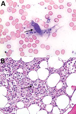 Thumbnail of Bone marrow smear sample (A) and bone marrow aspirate (B) for patient 2 with visceral leishmaniasis caused by Leishmania infantum, Lebanon. Arrows show amastigotes within macrophages. Panel A, Wright Giemsa stain, original magnification x400; panel B, hematoxylin and eosin stain, original magnification x200.