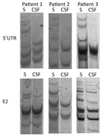 Thumbnail of Single-strand conformation polymorphism analysis of 5′ UTR and E2 region human pegivirus amplicons from 3 patients with encephalitis of unclear origin, Poland, 2012–2015. CSF, cerebrospinal fluid; S, serum; UTR, untranslated region.