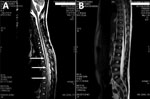 Thumbnail of Magnetic resonance imaging (MRI) of the spine in a 10-year-old boy from Brazil with Angiostrongylus cantonensis infection. A) MRI before treatment showing myelitis; sagittal T1 postcontrast sequences show intramedullary enhancement in the thoracic spinal cord T2–T10 with diffuse leptomeningeal enhancement (arrows). B) Normal MRI 1 month after treatment.