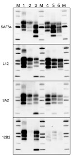 Thumbnail of Comparison of protease-resistant core of abnormal form of prion protein from moose (Alces alces) in Europe with chronic wasting disease and from cattle with BSE. Representative blots show epitope mapping analysis of protease-resistant core of abnormal form of prion protein in moose (lane 5, moose no. 1; lane 6, moose no. 2) in comparison with different BSE isolates (lane 2, classical BSE; lane 3, H-type BSE; and lane 4, L-type BSE). A sheep scrapie isolate was loaded as control (lan