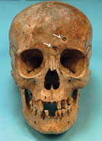 Thumbnail of The skull of Maria Salviati in frontal view. Cavitations on the frontal bone are apparent. (Archive of the Division of Paleopathology. University of Pisa.)