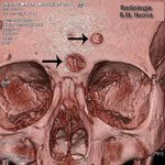 Thumbnail of Volume rendering of the skull of Maria Salviati. Two destructive osteolytic inflammatory processes, in advanced reparative phase (circumvallate cavitations), are apparent. (Archive of the Division of Paleopathology. University of Pisa.)