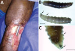 Thumbnail of Pin-site myiasis in a 77-year-old man 12 years after tibial osteosynthesis, Colombia. A) Open wound in the man's left leg, showing multiple insect larvae. B, C) Cochliomyia hominivorax screwworm fly larvae extracted from the wound. Arrow 1 indicates the spinose bands; note the spines arranged in 4 rows that separate each segment. Arrow 2 indicates its mouthhooks. Scale bars indicate 2 mm (B) and 1 mm (C).