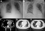 Thumbnail of Radiographs (A, B) and computed tomography (C–E) images of chest of organ donor with Francisella tularensis infection, United States, 2017. Images were taken after brain death. A) Anteroposterior view with patient in upright position, taken on day of admission; B) anteroposterior view with patient in supine position, taken on hospital day 10. C) Small bibasilar pleural effusions with adjacent subsegmental atelectasis versus pneumonia in the lower lobes (arrows); D) 3-cm round focus