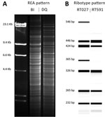 Thumbnail of Comparison of the molecular characteristics of Clostridioides difficile strain DQ/591 and the epidemic BI/027 strain in study of C. difficile at 2 US Veteran Affairs long-term care facilities and their affiliated acute care facilities. The HindIII REA (A) and PCR ribotype (B) banding patterns were distinct between REA strain DQ/RT591 and REA strain BI/RT027. Molecular weight markers (in kb) are shown adjacent to the REA gel pattern. An internal spiked LIZ 1200 standard was used for