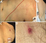 Thumbnail of Patient with Rickettsia japonica infection after being bitten by a land leech, Japan. A, B) Erythematous macular rash on the patient's torso (A) and extremities (B); C, D) eschar on the lower abdomen showing an atypical appearance with a relatively well-demarcated boundary of erythema with a tiny scab.
