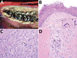 Thumbnail of Macroscopic and microscopic lesions of peste des petits ruminants virus–infected saiga, Mongolia, 2016–2017. A) Extensive necrotic surface plaque with multifocal ulceration lining the oral mucosa along the gingival margin of the molar teeth. B) Erosion and necrosis of the superficial oral mucosa with multifocal epithelial syncytia (inset, arrows). Original magnification ×200; inset ×1,000. C) Multifocal hepatocellular necrosis (upper and lower left, upper right) with dissolution of