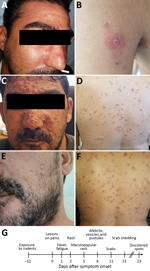 Thumbnail of Dermal manifestations of monkeypox on patient in Israel, 2018. Maculopapular rash was apparent on the face (A) and body on the day of hospital admission. A lesion on the left proximal extremity (B) was suspected to be a rickettsial eschar. After 3 days, the rash changed into vesicles and pustules on the face (C) and body (D). Skin resolution was apparent 13 days after admission; pustules and vesicles crusted and were shed (E, F). G) Timeline of disease progression.