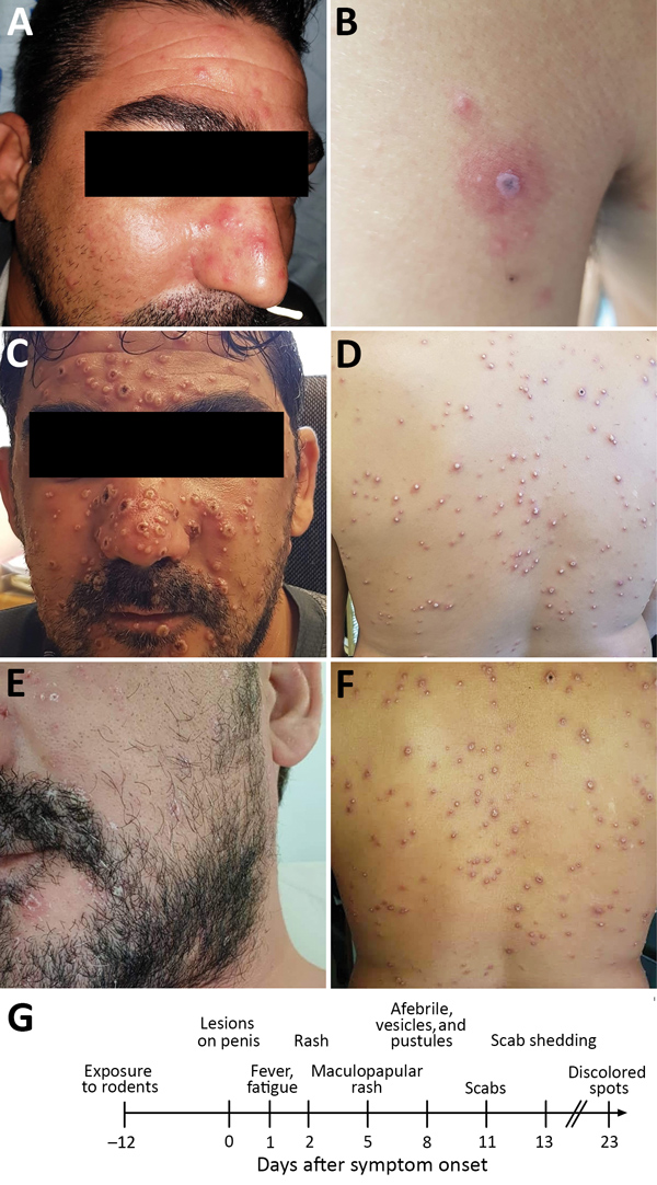 Dermal manifestations of monkeypox on patient in Israel, 2018. Maculopapular rash was apparent on the face (A) and body on the day of hospital admission. A lesion on the left proximal extremity (B) was suspected to be a rickettsial eschar. After 3 days, the rash changed into vesicles and pustules on the face (C) and body (D). Skin resolution was apparent 13 days after admission; pustules and vesicles crusted and were shed (E, F). G) Timeline of disease progression.
