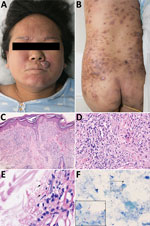 Thumbnail of Clinical features of Mycobacterium leprae infection in pregnant woman and pathologic characteristics of a biopsy and placenta samples, China, December 2017. A, B) multiple brown papules and firm nodules on the woman's trunk and face and ichththyosis presentation on the anterior tibia. C, D) Testing of biopsy sample from the face demonstrates subepidermal clear zone, nodular proliferation of spindle shaped histiocytes in the dermis. Hematoxylin and eosin stain; original magnification