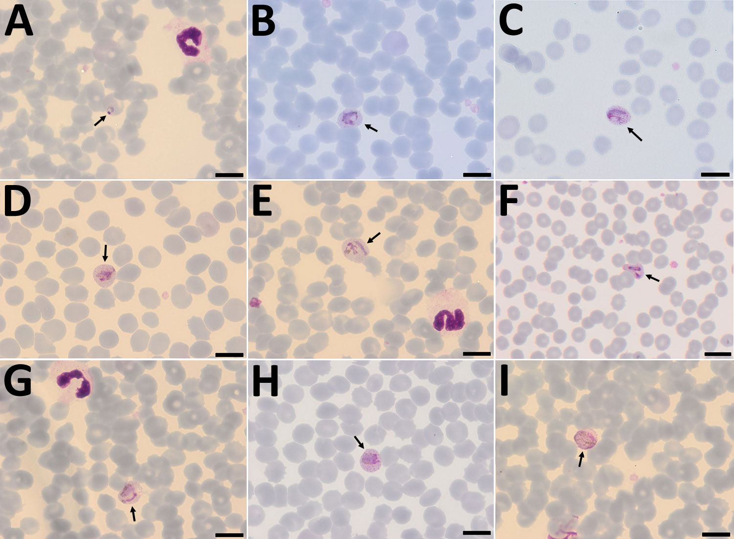 Plasmodium cynomolgi parasites in a Giemsa-stained thin smears of blood from a traveler returning from Southeast Asia to Denmark. Overall, few parasites were visible in the thin film, and no schizonts were visible at all. A) Young trophozoite. The cytoplasm is ring shaped, and the nucleus is spherical. The erythrocyte is not enlarged, and neither Schüffner's dots nor pigment are visible. B) Growing trophozoite. The young parasite is ring shaped and takes up more than half of the diameter of the