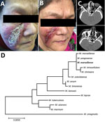 Thumbnail of Skin lesions and computer tomography scans of woman with Mycobacterium marseillense skin infection, China, 2018, and genomic analysis of isolate. A, B) Facial skin lesion of woman with M. marseillense infection before and after treatment. Infiltrated erythematous plaque with yellowish scales and crusts (A) resolved to a scar after clearance of infection (B). C) Computed tomography imaging before treatment (top) shows heterogeneous hypersignal in right ethmoid sinus and after treatme