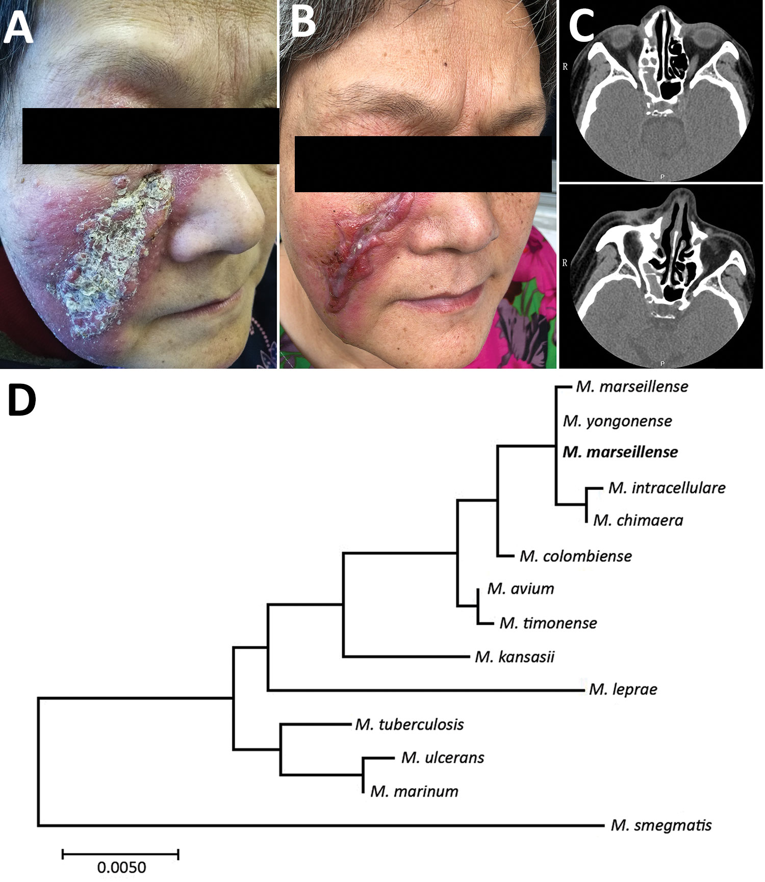 Skin lesions and computer tomography scans of woman with Mycobacterium marseillense skin infection, China, 2018, and genomic analysis of isolate. A, B) Facial skin lesion of woman with M. marseillense infection before and after treatment. Infiltrated erythematous plaque with yellowish scales and crusts (A) resolved to a scar after clearance of infection (B). C) Computed tomography imaging before treatment (top) shows heterogeneous hypersignal in right ethmoid sinus and after treatment (bottom) s