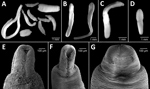 Thumbnail of Microphotographs of Dibothriocephalus spp. plerocercoids from 3 salmonid species in Lago Gutiérrez, Patagonia, Argentina. A) D. dendriticus and D. latus plerocercoids from Oncorhynchus mykiss rainbow trout. B) D. latus plerocercoids from Salvelinus fontinalis brook trout. C) D. dendriticus plerocercoids from Salmo trutta brown trout. D) D. latus plerocercoids from S. trutta brown trout. E, F) D. dendriticus plerocercoids from O. mykiss rainbow trout. G) D. latus plerocercoids from S