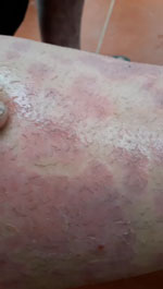 Thumbnail of Oxyspirura larvae emerging from skin of the neighbor of a case-patient with severe pruritic skin lesions, Vietnam. Video provided by the case-patient.
