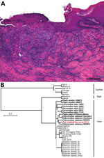 Thumbnail of Histopathologic and phylogenetic analysis of yaws-like lesions and Treponema pallidum subspecies pertenue in a wild chimpanzee, Guinea. A) Histopathologic evidence suggestive of a treponemal infection. Shown here is superficial ulcerative pyogranulomatous dermatitis including formation of a mixed inflammatory cell infiltration, predominantly neutrophil granulocytes. Deeper dermal layers show the formation of a perivascular lymphocytic inflammatory cell infiltrate, focal folliculitis