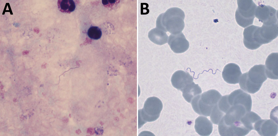 Giemsa-stained thick (A) and thin (B) blood films, demonstrating extracellular spirochetes. Original magnifications ×1,000.