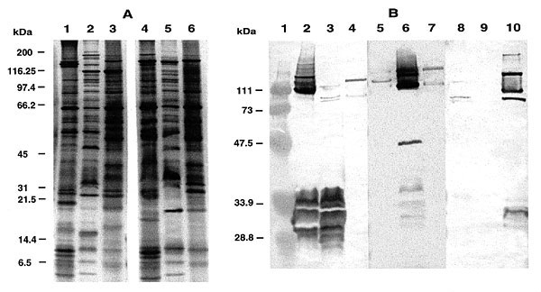 (A) Silver-stained SDS-PAGE of whole-cell protein preparations of Rickettsia conorii, the ELB agent and R. typhi. Lane 1, R. conorii; lane 2. ELB agent; lane 3, R. typhi; lane 4, heated R. conorii; lane 5, heated ELB agent; lane 6, heated R. typhi. Molecular weights are indicated on the left. (B) Western blot of rickettsial proteins probed with various antisera. R. conorii antigens (lanes 2, 6, and 10), ELB agent antigens (lanes 3, 7, and 11) and R. typhi antigens (lanes 4, 8, and 12) were probe