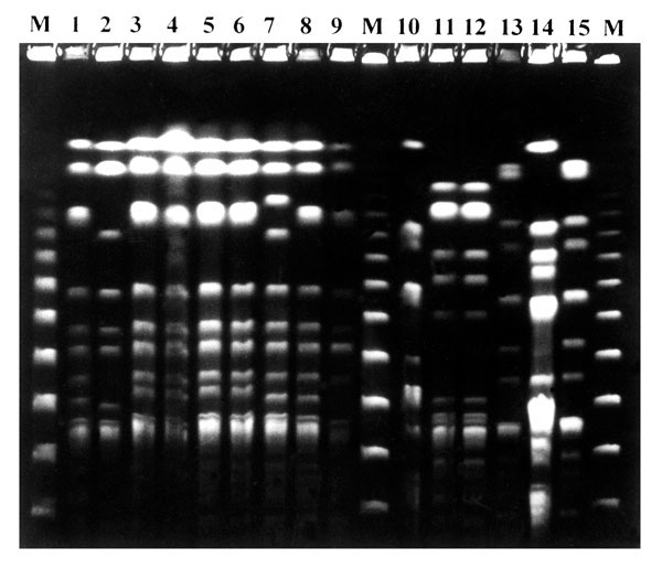 Pulsed-field gel electrophoresis pattern of XbaI-digested genomic DNA of Stenotrophomonas maltophilia isolates from two SM-RE patients. Lanes 1-10 from patient 1 (persistence group): pattern 1a (lanes 1,3-6,8), pattern 1b (ln 7), pattern 1c (lane 9) and pattern 2 (lane 2); lanes 10-15 from patient 5 (variability group): pattern 3 (lane 10), pattern 4 (lane 11,12), pattern 5 (lane 13), pattern 6 (lane 14), pattern 7 (lane 15). Lanes M, bacteriophage lambda standard marker.