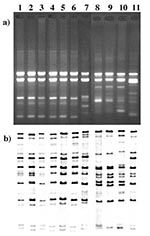 Thumbnail of A) RAPD patterns of Corynebacterium diphtheriae isolated from 1995 to 1997. Lane 1, 1740 (strain #), gravis, G1/4 RAPD type strain. Lane 2, B327, gravis, G1/4 (RAPD type), 1997 (year of isolation). Lane 3, B400, mitis, G1/4, 1995. Lane 4, 490, gravis, G1/4 ribotyping type strain. Lane 5, B375, gravis, G1/4, 1995. Lane 6, B294, mitis, G1/4, 1996. Lane 7, B325, gravis, G4v, 1997. Lane 8, 860, mitis, M1/M1v RAPD type strain. Lane 9, B389, mitis, M1/M1v, 1995. Lane 10, B324, mitis, M1/M