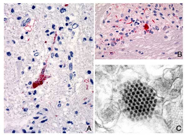 A). Positive immunostaining of EV71 antigens in neuron and neuronal process. Original magnification, X158. B). Positive immunostaining of EV71 antigens in necrotic area. Original magnification, X158. C). An array of picornavirus particles in a neuron (electron micrograph).