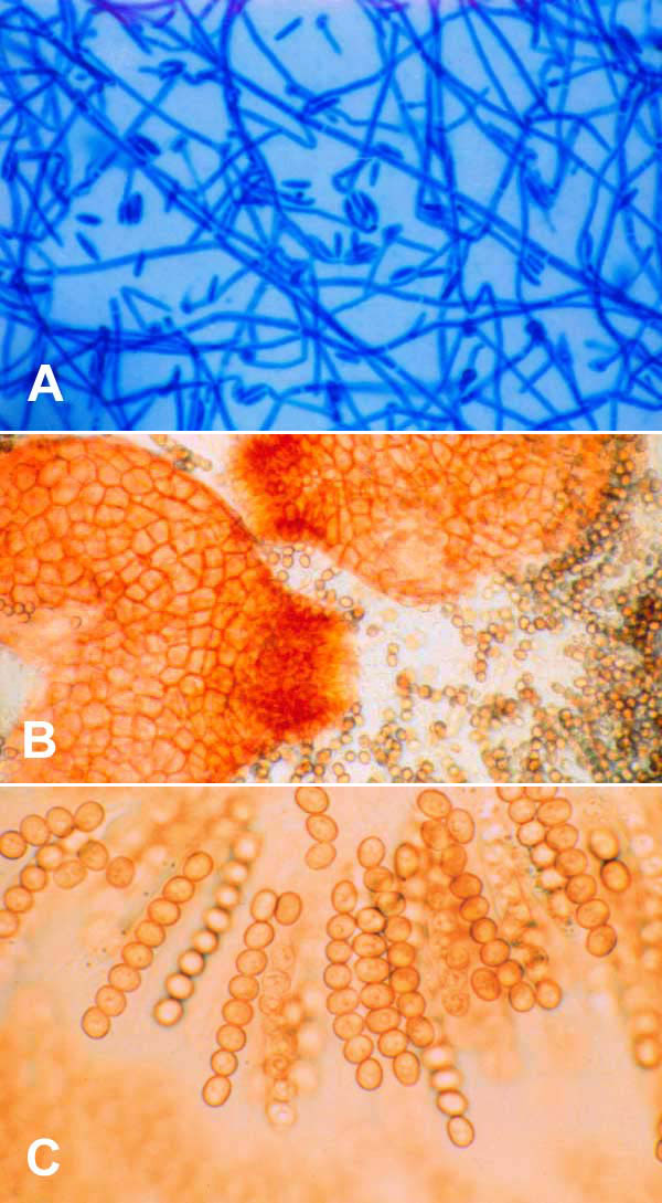 A) Neocosmospora vasinfecta after 4 days' subculture on Sabouraud agar (lactophenol cotton blue stain, x400). B) N. vasinfecta perithecial ascomata after 4 weeks on oatmeal agar with lupine stem (x160). C) Asci with ascospores of N. vasinfecta (x400).
