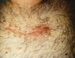Thumbnail of Surgical site infection following minimally invasive valve surgery.