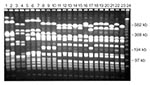 Thumbnail of Pulsed-field gel electrophoresis (PFGE) profiles of Staphylococcus aureus isolates digested with Sma 1. A variety of PFGE profiles are demonstrated in these 23 isolates.