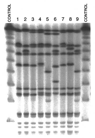 SmaI-pulsed-field gel electrophoresis of nine Staphylococcus aureus strains representative of the most prevalent MRSA clonal type in North America.