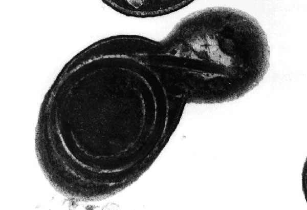 Transmission electron micrograph of a cell culture-derived Encephalitozoon intestinalis spore showing the polar tubule in the process of being extruded. The coiled arrangement of the tubule within the spore is clearly demonstrated. Original magnification, x39,000.