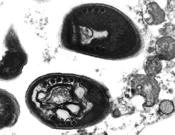 Transmission electron micrograph of an Encephalitozoon intestinalis spore from cell culture showing the polar tube with four to seven coils in single rows, which is typical of the genus Encephalitozoon. Original magnification, x28,500.