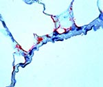 Thumbnail of Ebola virus antigen-positive cells (red) in lung of an insectivorous bat as determined by immunohistochemistry. Note prominent endothelial immunostaining. (Rabbit anti-Ebola virus serum, napthol/fast red with hematoxylin counterstain, original magnification x 250).