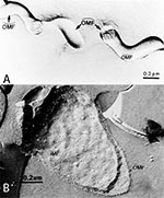 Thumbnail of   Freeze-fracture electron microscopy of Treponema pallidum subsp. pallidum (A), and Escherichia coli (B). Concave  and convex outer membrane (OMF) and inner membrane (IMF) fracture faces.