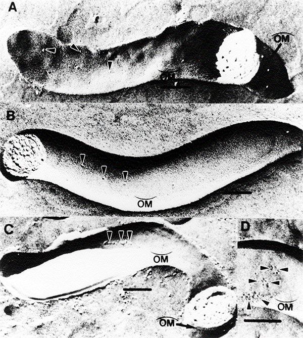 Freeze-fracture electron microscopy of T. pallidum subsp. pallidum demonstrating TROMP aggregation. Concave  and convex   outer membrane fracture faces (OM). T. pallidum incubated in heat-inactivated normal rabbit serum for 16 hours (A), in immune rabbit serum for 2 hours (B), and in immune rabbit serum for 16 hours (C) and (D). Arrows show individual (A&B) and aggregated (C&D) TROMPs. Bar in each micrograph represents 0.1mm. Photograph reprinted with the permission of the Journal of I