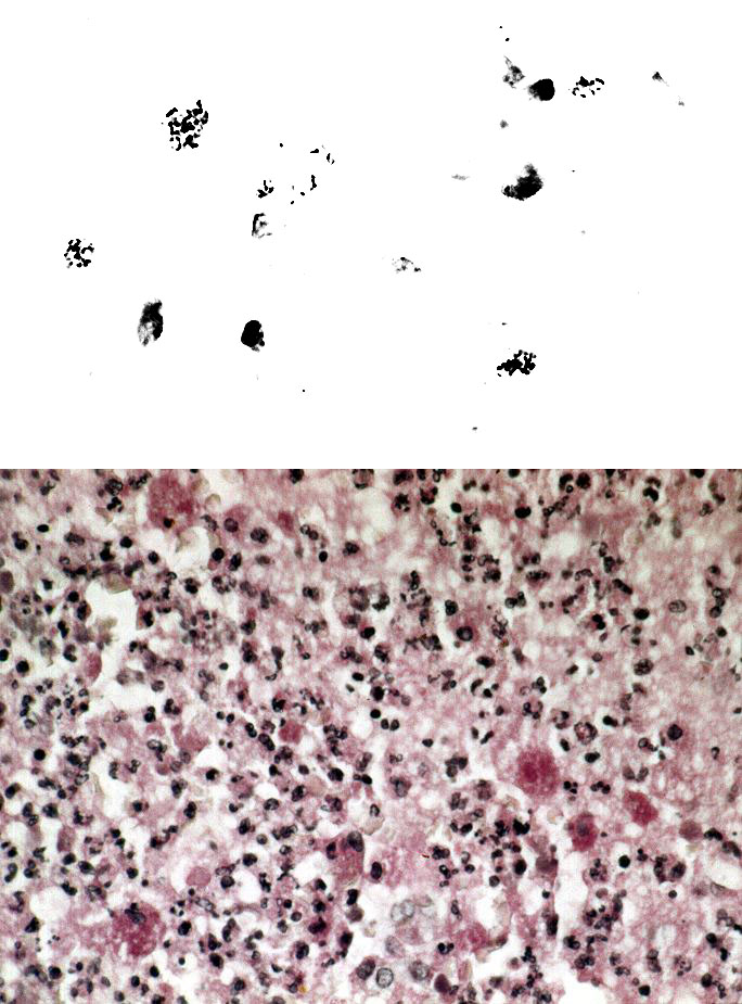 A. Bronchial tissue Gram stain showing intrahistiocytic coccobacillary forms of Rhodococcus equi. Original magnification, x 1,000. B.Open lung biopsy showing coalescent microabscesses with numerous histiocytes containing Rhodococcus equi organisms. PAS stain. Original magnification x 250. Figure provided by Dr. Margie Scott, Vanderbilt University Medical Center.