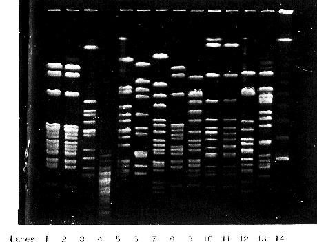 Pulsed field gel electrophoresis of Haemophilus influenzae type b (Hib) isolates from blood culture of two elderly nursing home residents (lanes 1 and 2) compared with epidemiologically unrelated H. influenzae isolates sent to our laboratory for typing: lane 3, laboratory Hib strain; lane 4, non-H. influenzae; lane 5 and 12, invasive nontypeable H. influenzae; lane 6-11, unrelated Hib isolates; lane 13, H. influenzae type a; lane 14, 1 kilobase molecular marker. The enzyme used for DNA digestion