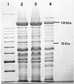 Thumbnail of Coomassie blue stained polypeptide profiles of the R. felis, R. typhi, and R. akari plaque-purified seeds separated by SDS-PAGE (7.5%). Lane 1: 10kDa molecular mass marker, with 78 and 120kDa sizes indicated; Lane 2: R. felis; Lane 3: R. typhi (Wilmington); and Lane 4: R. akari (Kaplan).