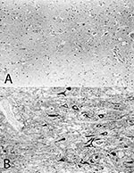 Thumbnail of Immunohistologic analysis of consecutive brain sections from the cerebral cortex of horse #215 with A) the monoclonal antibody Bo18, specific for the p38/p39 BDV-protein and B) a rabbit monospecific serum, specific for the p24 BDV-protein. Immunoreactive neurons are only detected with the p24-specific antiserum. Papa-nicolaou-counterstain, x130.