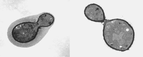 Transmission electron micrograph C. neoformans showing the characteristic polysaccharide capsule.
