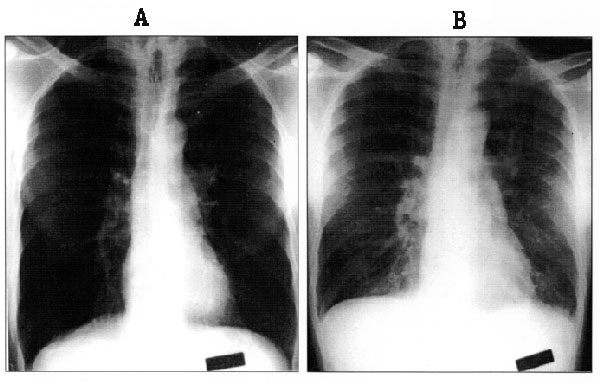 Chest radiographs of patient T/Tx at hospital admission on August 20, 1996 (Panel A), and during a period of increasing respiratory distress on August 22, 1996 (Panel B). Note the diffuse interstitial infiltrate and peribronchial cuffing that developed over that interval.