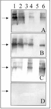 Western blot assay for detecting IgG antibodies in patient and rodent blood samples. A 1:500 dilution of serum was used to probe Western blots containing equimolar amounts of recombinant-expressed N antigens of various hantaviruses: 1) Bayou; 2) Muleshoe; 3) Puumala; 4) Rio Mamoré; 5) Seoul; and 6) Sin Nombre. Serum samples are directed against specific hantaviruses as verified by reverse transcription-PCR and sequence analyses: (A) patient T/Tx, Bayou virus; (B) Bayou virus-seropositive Oryzomy